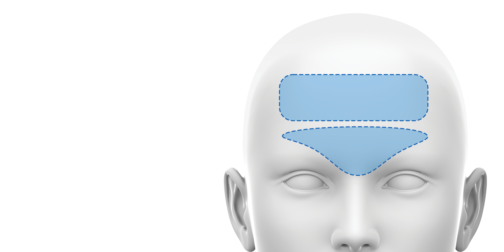 botulinum toxin training for the forehead and glabella
