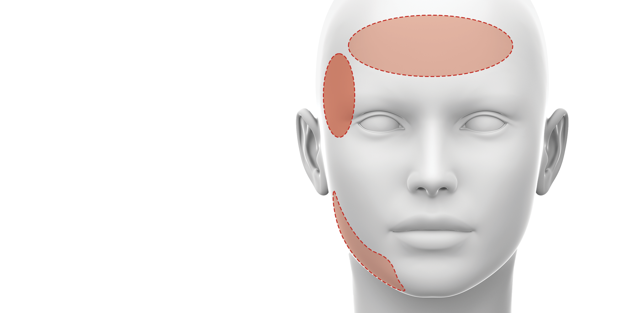 botulinum toxin for tmj related issues training
