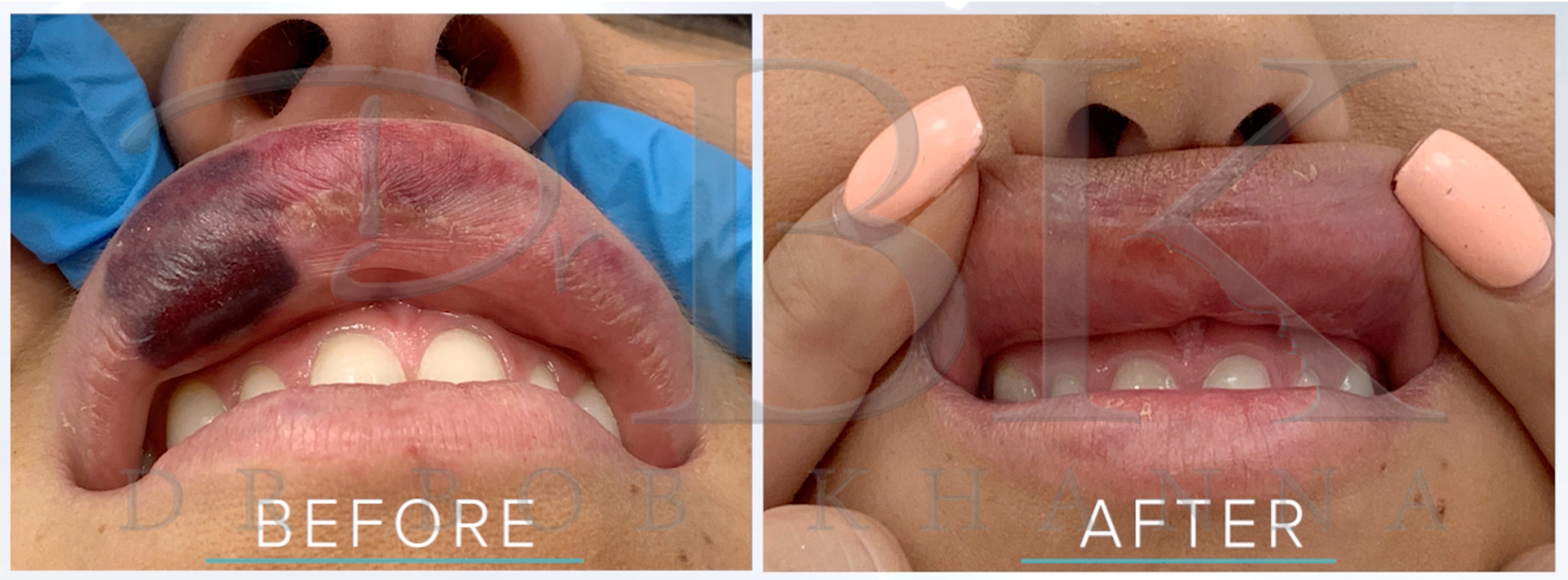 Why you should only get filler done by a Medical Professional: Botched Filler Before & After